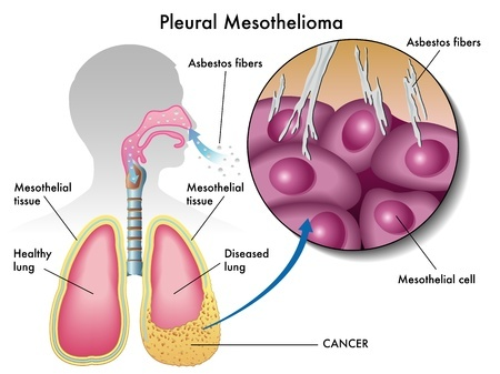 pleural mesothelioma in the lungs