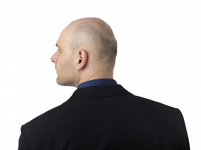 Hair loss can affect a man's self confidence