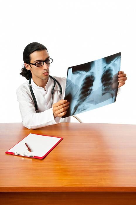 doctor looking at lung cancer on an xray